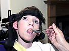 Young disabled person being fed
